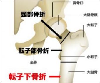 大腿骨転子下骨折